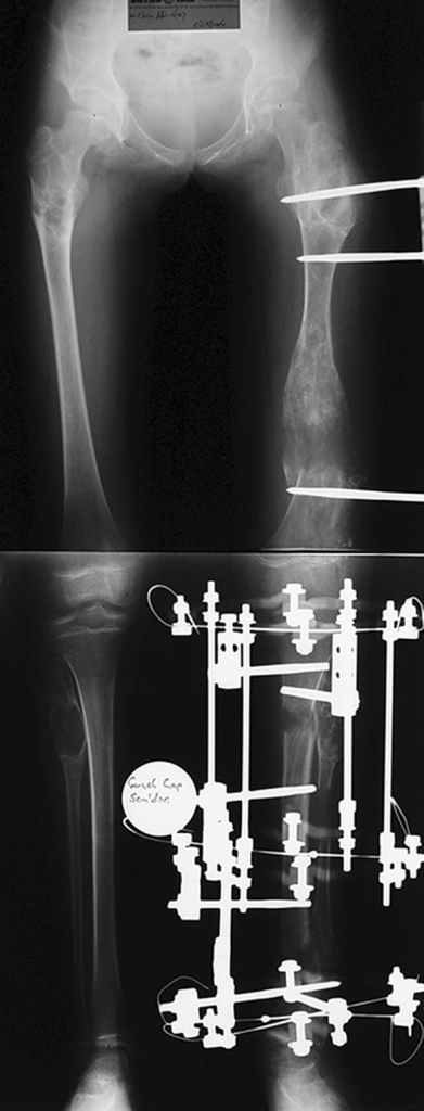 Femoral unilateral fixator for acute deformity correction and gradual lengthening, note the consolidation of the regenerates with corrected deformity