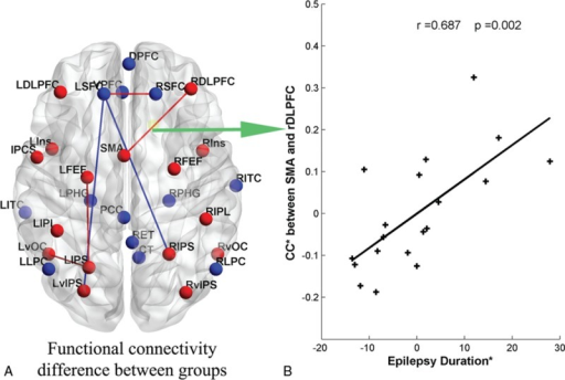 (A) The difference of functional connectivity between 2 groups. The red line represents the increased functional connections in patients compared with healthy controls, and the blue represents the decreased connections. Same as Figure 1, the red dots mean the nodes in TPN, and the blue one means the nodes in DMN. (B) The positive correlation between epilepsy duration (months) and the functional connection between SMA and right DLPFC. ∗Residuals after controlling for the influence of the gender, age (years), and AEDs (linear regression with covariates including gender and age). The green arrowed line between Sections A and B means that the functional connection positively correlated with the duration of epilepsy.