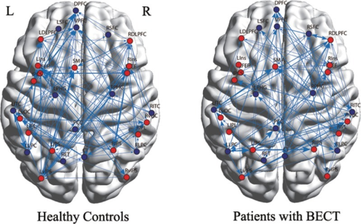 The average Granger causality in patients with BECTS (right) and healthy controls (left). The arrows represent the direction of the effective connections. The nodes in TPN are colored in red, and the nodes in DMN are colored in blue. The arrowed line represents the direction of Granger causal connection between 2 nodes.