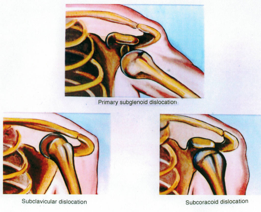 subclavicular dislocation; primary subglenoid dislocation; subcoracoid dislocation; glenohumeral joint; humerus; clavicle