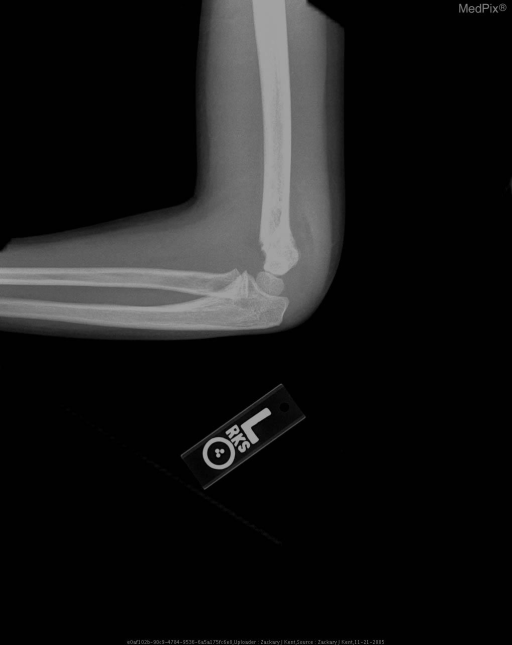 Lateral radiograph of left elbow shows mild posterior angulation of the capitellum as well as anterior shifting of the anterior fat pad and visualization of the posterior fat pad.