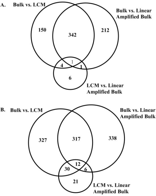 Probesets with significant changes in expression level between bulk, LCM, and linear amplified bulk samples. There is a similar distribution of overlapping probesets between the bulk samples and either of the amplified samples (LCM or Linear Amplified Bulk). Between amplified samples, there are very few probesets with significant changes in expression level, suggesting most of the changes observed between bulk and LCM are a by-product of an amplification protocol bias. These observations were consistent in both (A) normal tissue samples, and (B) cancer tissue samples.