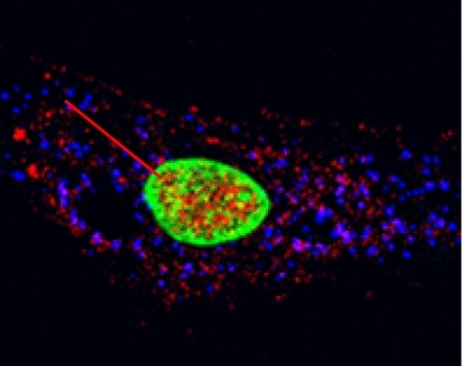 CSB (red) moved into mitochondria (blue) after oxidative stress.