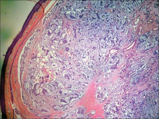 well-circumscribed dermal nodule. (H and E, × 40)