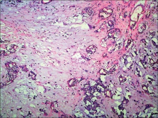 Biphasic tumor composed of myxochondroid stroma and epithelial component. (H and E, × 200)