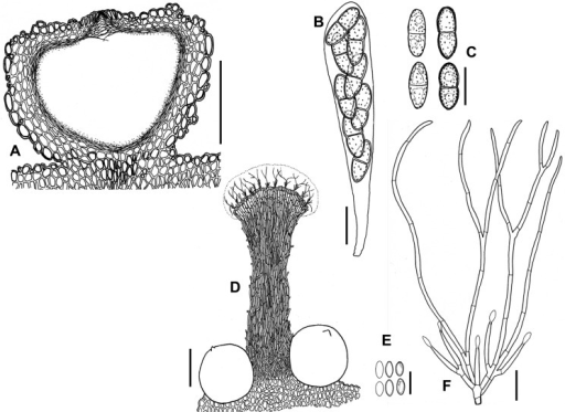 growth and sporulation of cryptosporiopsis spp 2018-1-19  canadian journal of plant pathology latest articles  effect of environmental conditions on the growth of cryptosporiopsis spp causing leaf and nut blight on cashew  the role of amylase on pathogenesis and whether the fungi can use starch as the sole source of energy for growth and sporulation remain unclear.