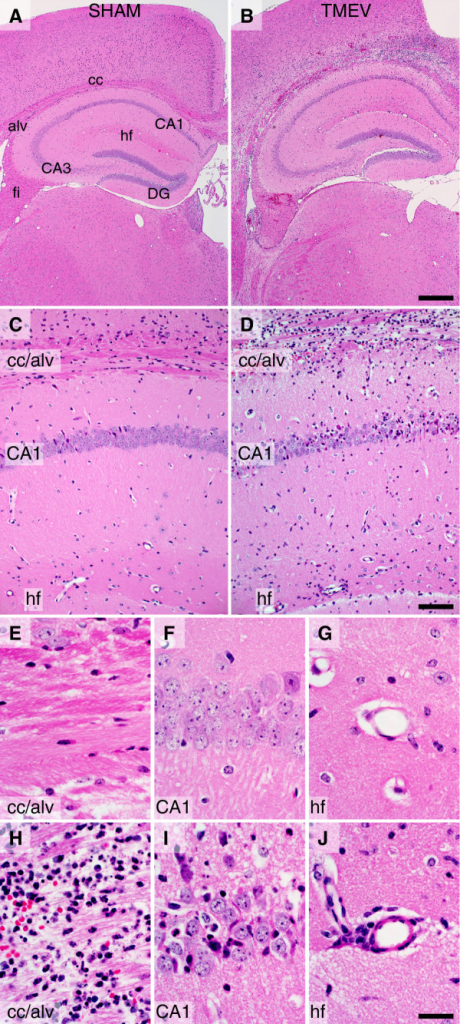 Histological evidence of rapid immune cell infiltration into the hippocampus of mice acutely infected with Theiler's murine encephalomyelitis virus (TMEV). C57BL/6J mice were injected intracerebrally with 2 × 105 PFU TMEV in 10 μL of RPMI (B, D, H-J) or with 10 μL RPMI (SHAM) (A, C, E-G). The animals were killed by intracardiac perfusion of 4% paraformaldehyde 24 h after infection. Brain was processed for paraffin embedding and sectioning, and stained with hematoxylin and eosin. Robust inflammatory infiltrate is present above the hippocampus and throughout the corpus callosum in the TMEV-infected mice (B, D). Sham-infected mice exhibit no signs of infiltrate (A, C). Higher magnification confirms the presence of infiltrate throughout the corpus callosum and alveus (H), within the CA1 pyramidal neuron cell layer (I), and within the perivascular space along the hippocampal fissure (J) in virus-infected mice but not in sham-infected mice (E-G). Scale bar in B is 500 μm and refers to (A); scale bar in (D) is 100 μm and refers to (C); scale bar in (J) is 20 μm and refers to (E-I). Abbreviations: alv = alveus; CA1 and CA3 = cornu ammonis fields of the hippocampus; cc = corpus callosum; DG = dentate gyrus; fi = fimbria; hf = hippocampal fissure. Findings are representative of more than 20 animals per group.