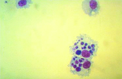 Canine monocytes (DH82) cultivated in vitro and heavily infected with Ehrlichia chaffeensis, as viewed by light microscopy after Giemsa staining. Typical ehrlichial inclusions (morulae) are observed within the cytoplasm of the infected cells (Giemsa, original magnification X600).