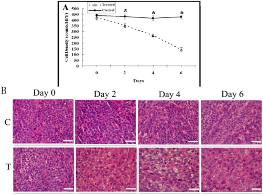 Histopathologic analysis of tumor cell density changes.A, The graph shows the changes of mean tumor cell density of the control and treated tumors post treatment. There was significant difference in tumor cell density between control and treatment groups on days 2, 4 and 6 (* = P<.001). B, Representative photomicrographs of hemotoxylin and eosin stained sections of the control (C) and treated (T) tumors on days 0, 2, 4 and 6. Scale bars: 50 µm.