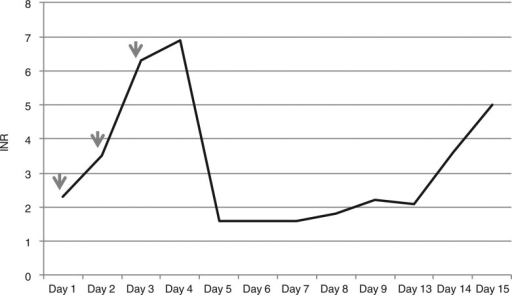 INR curve and timing of moxifloxacin administration in Case 2 (arrows pointing the days that patient received moxifloxacin).