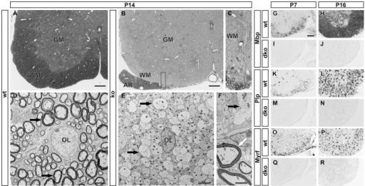 Histological analysis of myelination after CNS-specific Sox10 deletion and consequences of combined deletion of Sox8 and Sox10 on myelin gene expression.(A–C) Light microscopy of 1 µm semi-thin sections of the spinal cord ventral horn in wildtype (wt) (A) and Sox10ΔCNS (ko) mice (B,C) at P14 following Richardson's stain. Myelinated axons are stained in the white matter (WM) of the wildtype, but not the mutant. Sections from Sox10ΔCNS mice contain myelin only in the anterior rootlet (AR) where it is formed by Schwann cells. C represents a higher magnification of the area boxed in B. GM, grey matter. Scale bars, 100 µm. (D–F) Transmission electron microscopy of the wildtype spinal cord ventral horn at P14 shows myelinated axons (D, black arrows) around an OL (OL) in the white matter. In contrast, OL in Sox10ΔCNS mice are surrounded by axons that lack myelin sheaths (E,F, black arrows). In mutant mice only Schwann cells in the anterior rootlet have formed myelin sheaths (F, white arrow). Scale bars, 2.5 µm. (G–R) Differentiating OL were visualized by in situ hybridization on transverse spinal cord sections from the forelimb region of wildtype (wt) (G,H,K,L,O,P) or Sox10ΔCNS Sox8lacZ/lacZ (dko) (I,J,M,N,Q,R) mice at P7 (G,I,K,M,O,Q), and P16 (H,J,L,N,P,R) using antisense probes against Mbp (G–J), Plp (K–N), and Myrf (O–R). Ventral horn region is shown. Scale bar, 200 µm.