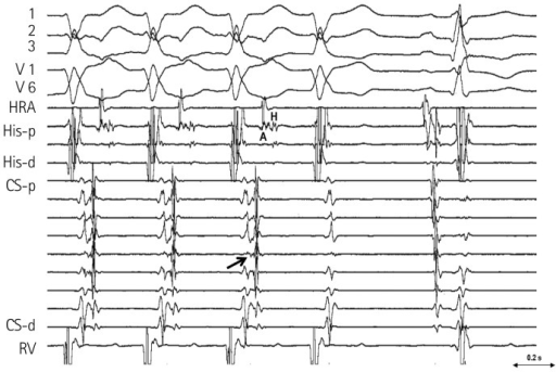 The surface electrocardiogram and the intracardiac electrograms during the tachycardia. Tachycardia terminated spontaneously without atrial activation. The earliest retrograde atrial (A) activation site was in the mid-CS (arrow). The His (H) activation followed the atrial activation and occurred before the beginning of the QRS. p: proximal, d: distal, CS: coronary sinus, HRA: high right atrium, RV: right ventricle.