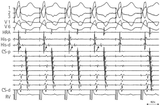 Right ventricular burst pacing with a cycle length of 420 msec after AP ablation. His potential was obtained from left ventricle. During RV pacing, there was progressive prolongation of VH interval (arrows) that ended up with VA conduction block (Wenckebach VA block at below the His). p: proximal, d: distal, HRA: high right atrium, CS: coronary sinus, AP: accessory pathway, RV: right ventricle, VH: ventriculo-Hisian, VA: ventriculo-atrial.
