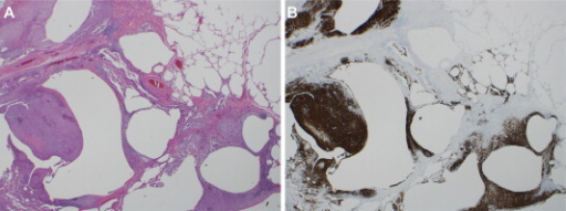 A, Surgical lung biopsy demonstrating increased presence of inflammatory cells along with cavitary and cystic changes. B, Lung Biopsy with CD1a immunostaining demonstrating the presence of increased Langerhans cells.