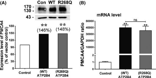 (A) Western blot showing stable overexpression of either wild-type (WT) or R268Q mutant ATP2B4 protein at similar level in SH-SY5Y cells. (B) ATP2B4 mRNA levels in WT and mutant stably overexpressing cells were similar as shown by quantitative real-time PCR. ** represents statistical significance at p<0.01 as compared to vector. ns: Not statistically significant.