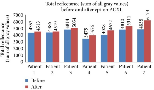 Total reflectance (sum of all gray values) seen in patients undergoing epi-on ACXL before and after the procedure.