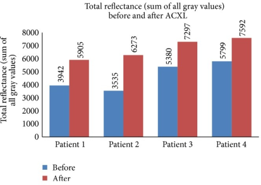 Total reflectance (sum of all gray values) seen in patients undergoing epi-off ACXL before and after the procedure.