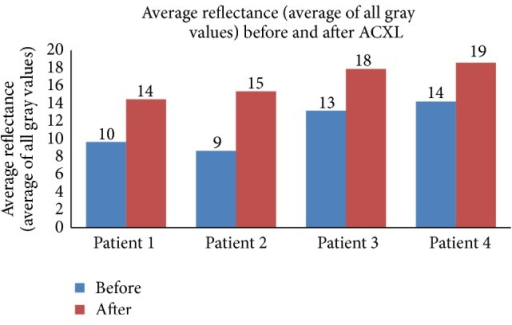 Average reflectance (average of all gray values) seen in patients undergoing epi-off ACXL before and after the procedure.
