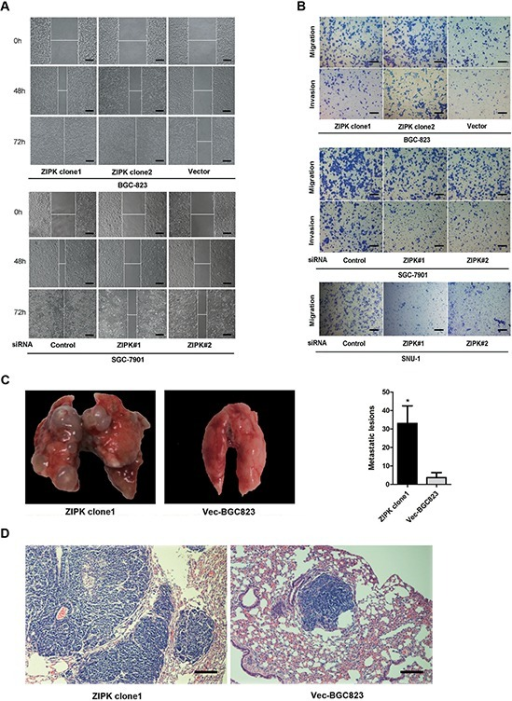 ZIPK promotes cell invasion and gastric cancer metastasis(A) Wound-healing assay showed that over-expression of ZIPK promoted cell migration. Silencing ZIPK inhibited cell migration (Scale bars: 100 μm). Representative images were taken at 0 h, 48 h and 72 h after scratching. (B) Transwell assay indicated that over-expression of ZIPK promoted cell migration and invasion. Inversely, ZIPK ablation repressed cell migration and invasion (Scale bars: 100 μm). (C) The effects of ZIPK on tumor metastasis in vivo were evaluated by tail vein injections of cells in nude mice. Representative images of lungs derived from nude mice injected with ZIPK- or empty vector-transfected BGC823 cells were shown in the left panel. Number of visible surface metastatic lesions was indicated in the right panel (*indicates P < 0.05, independent Student's t-test). (D) Lung metastases in the mice were confirmed by H&E staining (Scale bars: 100 μm).