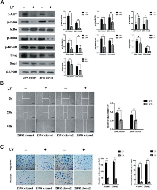 The AKT inhibitor LY294002 decreases ZIPK-induced cell migration and invasion(A) ZIPK-overexpressed cells were treated with LY294002 (20 μM) or DMSO for 2 h, the expressions of pAKT, IKKα, p-IKKα, IκBα, p-IκBα, p-NF-κB, Snail and Slug were detected by Western blotting. (B) Wound-healing assay showed that LY294002 strongly inhibited cell migration (**indicates P < 0.01, independent Student's t-test, scale bars: 100). (C) Transwell assay indicated that LY294002 reduced ZIPK-induced cell migration and invasion (**indicates P < 0.01, independent Student's t-test, scale bars: 100).