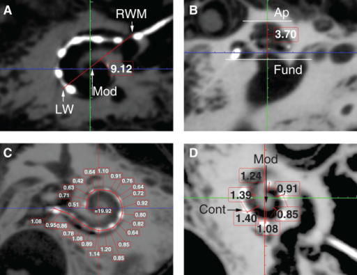 Critical cochlear assessments on cone-beam computed tomography (CBCT) images. 'A' value (A), cochlear height (B), insertion depth for the first 360° insertion angle (C), and distance between the electrode contacts and the modiolus (D) are demonstrated (in mm). Ap, apex; Cont, contours of cochlear implant; Fund, fundus; LW, lateral wall; Mod, modiolus; RWM, round window membrane.