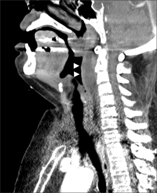 Sagittal images from an initial contrast-enhanced neck computed tomography scan show a retropharyngeal abscess (arrowheads).