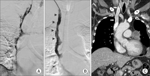 (A) Initial venography shows impaired blood flow in the right internal jugular vein (IJV) and superior vena cava (SVC). (B) Follow-up venography reveals improved blood flow after catheter-directed thrombolysis and SVC stenting (arrowheads). (C) Computed tomography at 6 months after treatment shows resolution of the thrombosis and intact blood flow in both IJV and SVC (arrows).