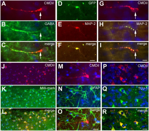 Phenotype of transplanted cells. The transplanted cells acquired different phenotypes as shown by immunoreactivity against different neuronal and glial markers. The cells shown in (A–C) derive from the GE and are GABA+. Cells shown in (D–I) derive from the neocortex, and the cells shown in (J–L) are a mixed population of transplanted cells; the cells in (D–L) and (P–R) are immunoreactive for neuronal markers, MAP2 in (D–I), Milli-Mark in (J–L), and TUJ in (P–R). The cells in (M–O) show GFAP+ cells (green) in the host slice and a transplanted cell from the GE labeled with CMDiI (red), which is not GFAP immunoreactive. (D–F) is a transfected GFP+ (green) cell and (G–I) are CMDiI+ (red). (J–K) are CMDiI+ (red) and Milli-Mark+ (green). Scale bar = [(A–C,G–I,P–R) 10 μm] and [(D–F,J–O) 50 μm].