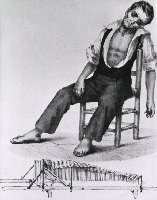 <p>Patient with cholera slumped in chair, with special apparatus [bed?] below.</p>