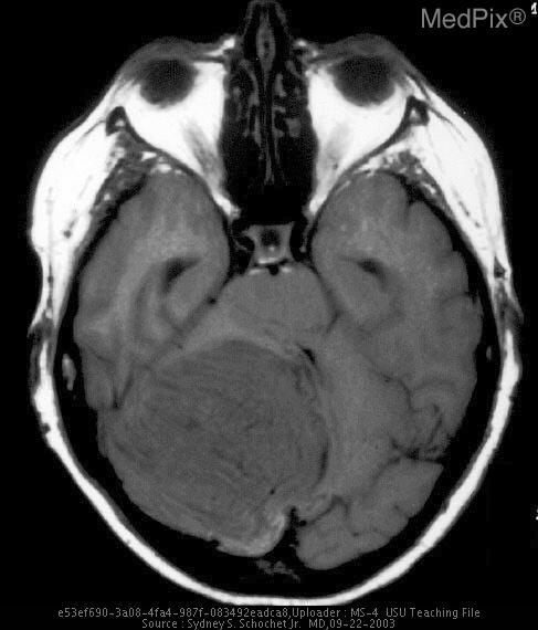 Axial T1 weighted MRI shows coarse striations resulting from irregular, abnormally thickened cerebellar folia.