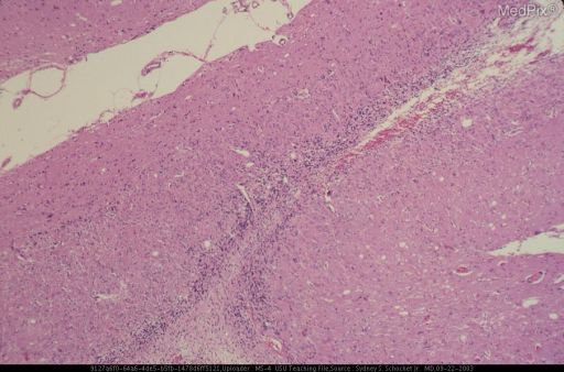 Low magnification histological section showing subpial of myelinated fibers overlying a band of large neurons that replace the Purkinje cells and outer portion of the internal granular cell layer.