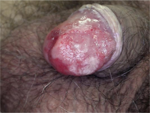 Squamous cell cancer of the penis
