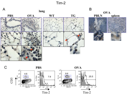 Regulation of lung Tim-2 expression by allergen and VEGF. Immunohistochemical (A-B) and flow cytometric (C) detection of Tim-2 expression in lung (A) and lymphoid (B) tissues, and on lung T cells (C). (A-B) Note positive Tim-2 staining on different lung cells besides lymphocytes in allergen- or VEGF-exposed mouse lungs. Red arrows point to Tim-2+ APC-like cells and granulocyte. Inserts show high magnification fields (100x) with marker-positive cells (lymphocytes). (C) Flow cytometry analysis of cells from lung enzymatic digests obtained from PBS- and allergen-treated mice showed an increase in lung Tim-2+ T cells in OVA-treated mice. The histograms show the percentage of Tim-2+CD3+ cells in the lung (clear histogram) as compared to the appropriate isotype control stained CD3+ cells (gray histogram).