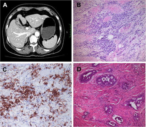 Radiological and pathological data of the case after chemotherapy. A. The mass decreased and was limited to the gallbladder fossa with clear margin. B. Small round-shaped tumor cells in gallbladder wall with marked interstitial fibrosis (HE×200). C. Positive expression of CgA in the cytoplasma of the tumor cells (IHC×200). D. Scattered large and cribriform glands infiltrate the mucous and muscularis layers (HE×200).