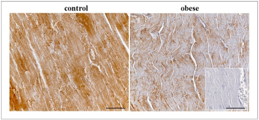 Immunohistochemical staining of CNP in the cardiac tissue of control and obese rats.Negative control was showed in the square. Scale bar: 50 µm.