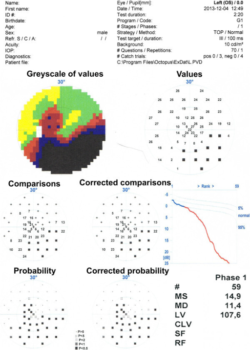The result for one patient obtained from the static perimeter. From the top: data on patient and study, a colour picture of the quality of vision in the 30O, numerical data of quality of vision in various fields expressed in decibels: values, comparisons, corrected comparisons, probability and corrected probability. In the lower right corner there are two most important parameters, namely MD (Mean Defect) and LV (Loss Variance). The analysis did not take into account LV value, because there was no significant correlation between LV and any of the OCT parameters.