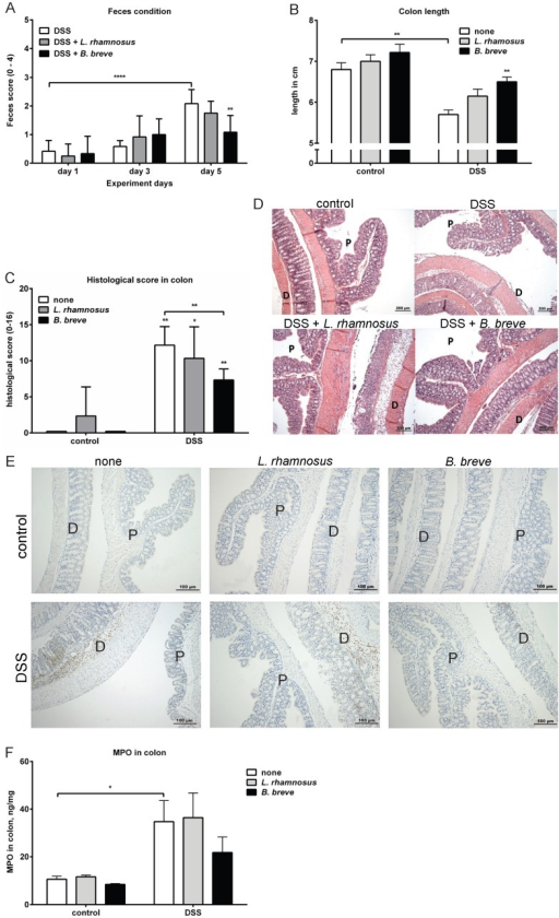 B. breve, but not L. rhamnosus, ameliorates DSS-induced colitis.C57BL/6 mice with or without probiotics treatment received either normal drinking water or drinking water with DSS for 5 days. A) The fecal condition was calculated on day 0, day 3 and day 5 after DSS treatment. On day 6, the mice were sacrificed and B) the colon length of each mouse was measured. Results are expressed as mean ± SEM, n = 6 mice per group, pooled from two independent experiments. Colons were collected and examined for histological score as described in materials and methods. C) The histological scoring graph and D) representative H&E staining photos are shown. Results are expressed as mean + SEM, n = 3 mice per group, pooled from two independent experiments. E) The presence of Ly-6B+ cells was visualized in the proximal (p) and distal (d) colons using immunohistochemistry. The pictures are representative of 3 separate mice per group obtained from two experiments. F) The concentration of MPO was measured in colon homogenates of each group. Results are expressed as mean + SEM, n = 4 mice per group, pooled from two independent experiments. * p<0.05; ** p<0.01.