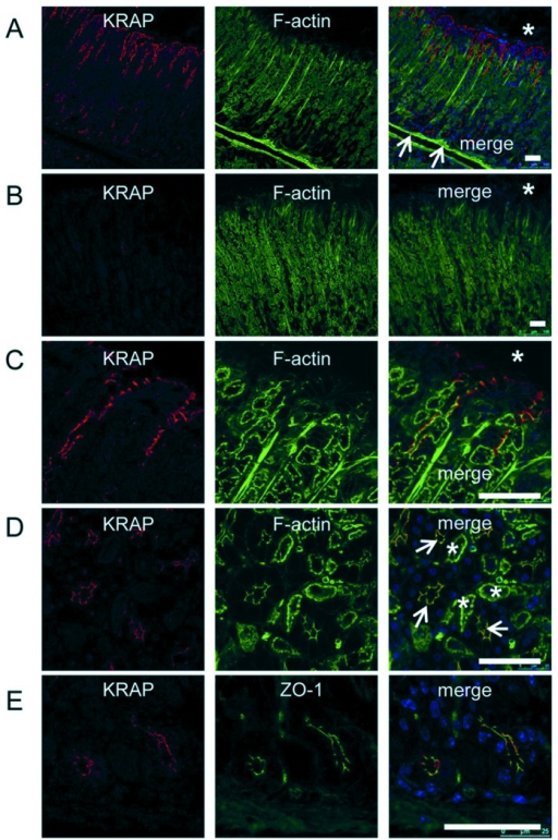 KRAP expression in the mucous cells and the chief cells of the mouse stomach.(A–D) Fluorescent confocal images of stomach sections for KRAP (red),filamentous actin (F-actin) with phalloidin (green), and the merged photo. Lowmagnification images from the pit region to the base region of gastric glands fromwild-type (A) or KRAP-deficient (B) mice. Asterisk and arrows indicategastric lumen and muscularis mucosae beneath the base region, respectively. (C) Highmagnification images of the pit region of gastric glands. Asterisk indicates gastriclumen. (D) High magnification images of the base regions of gastric glands. Asterisksand arrowheads indicate the parietal cells and the apical membranes of the chief cells,respectively. (E) Fluorescent confocal images of the base regions of gastric glands forKRAP (red), ZO-1 (green), and the merged photo. Blue,4′,6-diamidino-2-phenylindole (DAPI) staining; scale bar, 50μm.