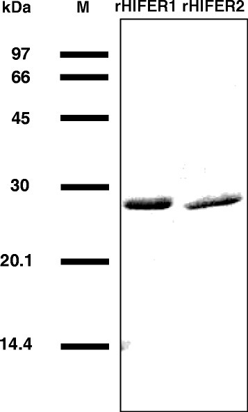 Purification of recombinant HlFERs (rHlFERs). His-tagged rHlFERs (rHlFER1 and rHlFER2) were expressed in E. coli and then purified through Ni-affinity chromatography and dialysis against PBS. After refolding, 2 μg per protein was subjected to SDS-PAGE, and then the gel was stained with Coomassie brilliant blue. M, low molecular weight marker.