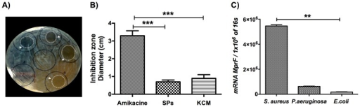 KCM antimicrobial activity in E. coli.KCMs from DFUs that showed higher LL-37 and HBD-2 concentrations were tested for antimicrobial activity against S. aureus, P. aeruginosa and E. coli in a modified radial diffusion assay. Eight KCMs from DFUs cell cultures showed clear inhibition areas (arrow heads) only against E. coli (A and B) comparable with the solid-phase synthesized LL-37 (SP). mprf gene expression in the different clinical isolates (C). Each bar represents the mean ± SD of five independent experiments.