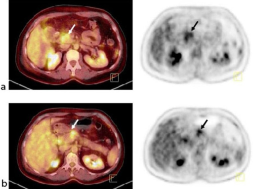 January 2013. Tumor lesions in the primary tumor and lymph nodes prior to chemotherapy. a Fused PET-CT and PET of the primary tumor. b Fused PET-CT and PET of the regional lymph node metastases.
