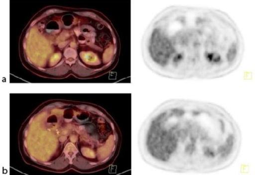 March 2013. Tumor lesions in the primary tumor and lymph nodes after 2 cycles of nab-paclitaxel plus gemcitabine. a Fused PET-CT and PET of the primary tumor. b Fused PET-CT and PET of the regional lymph node metastases.