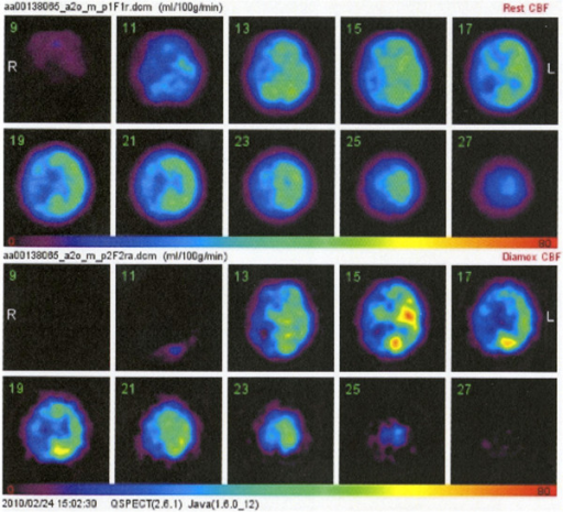 Iodine-123 N-isopropyl-p-iodoamphetamine single photon emission computed tomography scans revealing severe reduction of cerebral blood flow especially in the right hemisphere, and the steal phenomenon bilaterally after injection of acetazolamide.