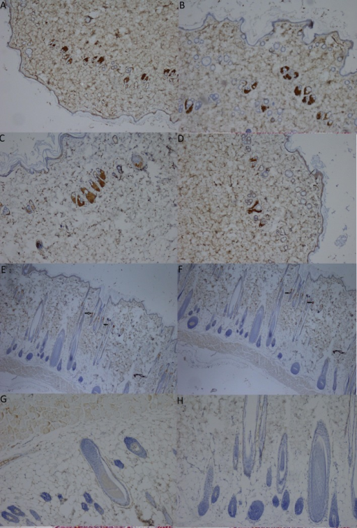 Immunohistochemical staining of the ER (estrogen receptor) in skin biopsies from the CMC-free group (A), the 0.5% CMC-plus group (B), the group treated with the n-hexane extract at a dose of 100 mg/kg (C), the group treated with the n-hexane extract at a dose of 200 mg/kg (D), the group treated with the ethyl acetate extract at a dose of 100 mg/kg (E), the group treated with the ethyl acetate extract at a dose of 200 mg/kg (F), the group treated with the ethanol extract at a dose of 100 mg/kg (G), and the group treated with the ethanol extract at a dose of 200 mg/kg (H) (magnification, 40X). The arrows indicate positively stained cells in the dermal layer.