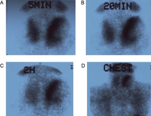 99mTc-MIBI scintigraphy demonstrated focal accumulation and persistent uptake of radiotracers at the wall of the cystic mass. (A and B) Early images of 99mTc-MI; Panels C and D: delayed images of 99mTc-MIBI.
