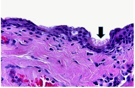 Cyst lining ciliated epithelium (arrow) (hematoxylin and eosin, magnification ×200).
