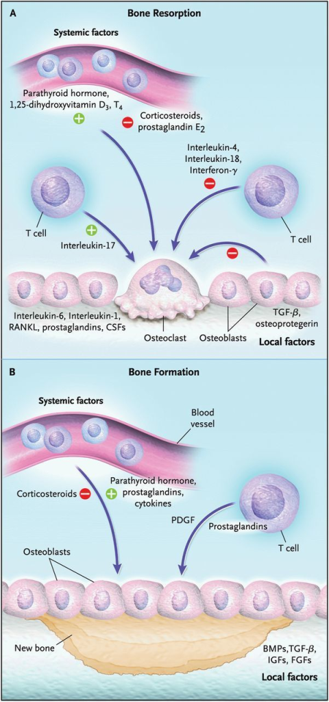 Factors implicated in bone resorption (A) and formation (B). Both systemic factors and locally acting factors induce the formation and activity of osteoclasts (Panel A). Systemic hormones such as PTH, 1,25-dihydroxyvitamin D3 and thyroxine (T4) stimulate the formation of osteoclasts by inducing the expression of receptor activator of nuclear factor-κB ligand (RANKL) on marrow stromal cells and osteoblasts. In addition, osteoblasts can produce interleukin-6, interleukin-1, prostaglandins and CSFs, which induce the formation of osteoclasts. Osteoblast can also produce factors, which inhibit the formation of osteoclasts, such as TGF-β, and osteoprotogerin. Helper cells such as T cells can produce cytokines that can inhibit the formation of osteoclasts, such as interleukin-4, interleukin-18 and interferon-γ. Both systemic factors and locally acting factors can enhance the proliferation and differentiation of osteoblasts (Panel B). These include PTH, prostaglandins and cytokines as well as growth factors such as PDGF produced by lymphocytes. In addition, bone matrix is a major source of growth factors, which can enhance the proliferation and differentiation of osteoblasts. These include the BMPs, TGF-β, IGFs and FGFs. Corticosteroids can induce apoptosis of osteoblasts and block bone formation. Plus signs indicate stimulation, and minus signs inhibition. Reproduced with permission from Roodman GD [11].