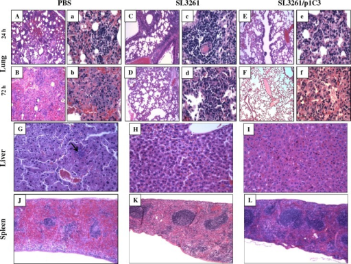 Histopathological changes in response to intranasal challenge with B. thailandensis E264.Lungs of vaccinated BALB/c mice were isolated in their entirety at 24 (A-C) and 72 h (D-F) post-infection with 5 x 106 CFU B. thailandensis (5 x LD50). The tracheas of each animal were exposed and inflated with 0.3 ml of 10% neutral-buffered formalin and immediately immersed in the same fixative. Livers (G-I) and spleens (K-L) were also used for histology; organs were collected under the same conditions. All samples were processed by standard paraffin embedding methods; sections were cut 2 mM thick and stained with haematoxylin-eosin (H & E). Preparation of tissue sections was performed by the University of Virginia Research Histology Core Facility. Tissue sections were examined by a veterinary pathologist who was blinded to animal group assignments. Sections A, B, C, D, E, and F are shown in magnification, 10x; representative sections a, b, c, d, e, and f are in magnification, 40x. Liver and spleen sections are shown in magnifications 10x and 5x, respectively.