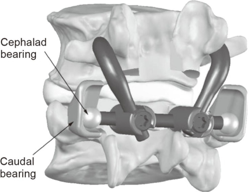 Schematic diagram of the total facet arthroplasty system. Reprinted with permission from Globus Medical Inc., Phoenixville, PA, USA.