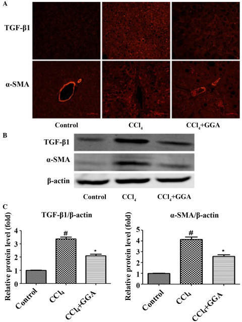 GGA attenuates profibrogenic protein expression in CCl4-induced rats. (A) Immunofluorescence was used to examine the expression levels of TGF-β1 and α-SMA in the liver tissues (magnification, ×200). (B) Protein samples (50 µg) were loaded for western blot analysis of TGF-β1 and α-SMA. Similar results were obtained from three repeated experiments. (C) Quantitative analysis was performed for TGF-β1 and α-SMA using a densitometer. Data are presented as the mean ± standard deviation. #P<0.05, compared with the control group; *P<0.05 compared with the CCl4 group. GGA, geranylgeranylacetone; CCl4, carbon tetrachloride; TGF-β1, transforming growth factor-β1, α-SMA, α-smooth muscle actin.